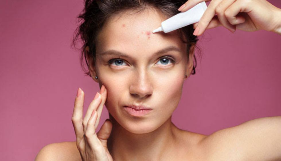 Why Pimples Causes, Types of pimples & How to Remove Pimples